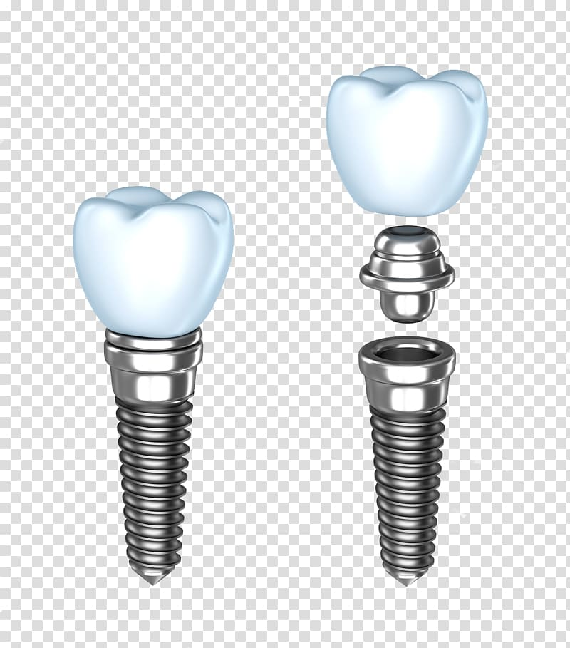 Two white tooths, Dental implant Dentistry Dentures Human tooth.