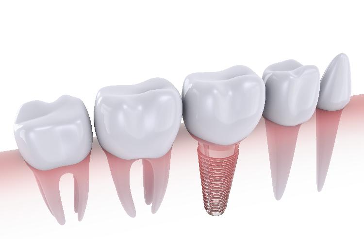 6 Easy Preparation Tips for Dental Implants in Fresno.
