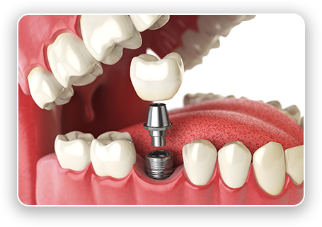 Expert Dental Implants in Ewa Beach, HI.