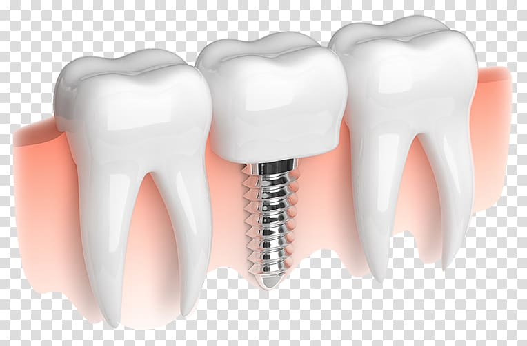 Dental implant Dentistry Smiles on State Street, Implants.