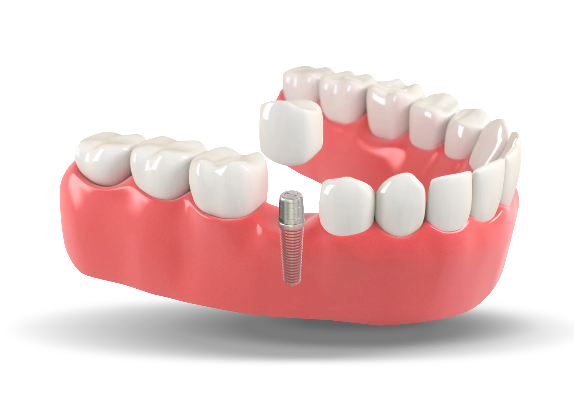 Dental Implants of Ocala.