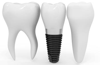 Dental Implants Brisbane.