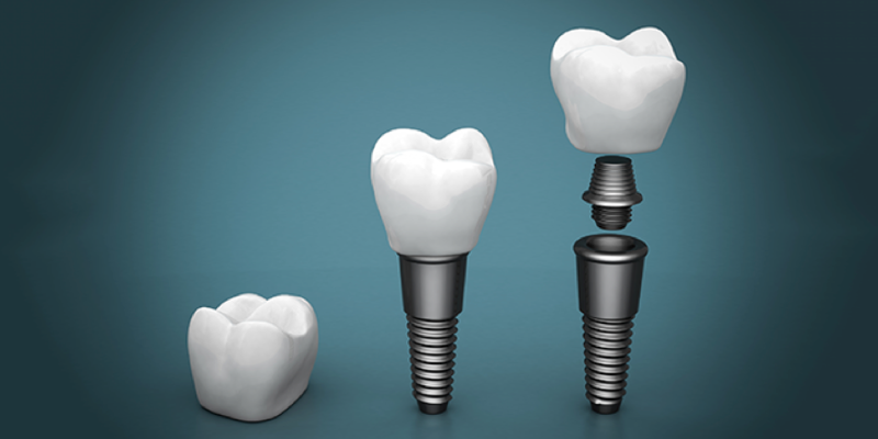 New Trends in Dental Implants.