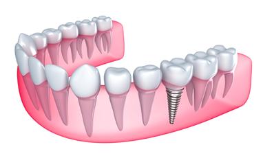 Dental Implants in Glasgow.