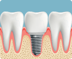 What is a dental implant and why have one?.