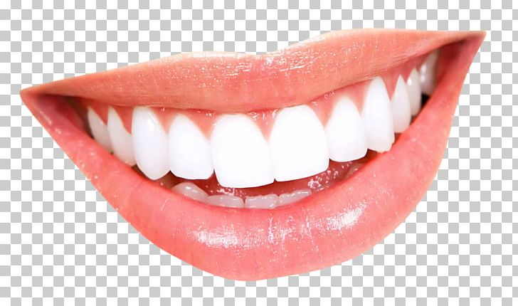 Smile Tooth Whitening Mouth PNG, Clipart, Cosmetic Dentistry.