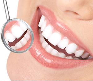 Dental Care of Nixa Cosmetic dentistry Oral hygiene, mouth.