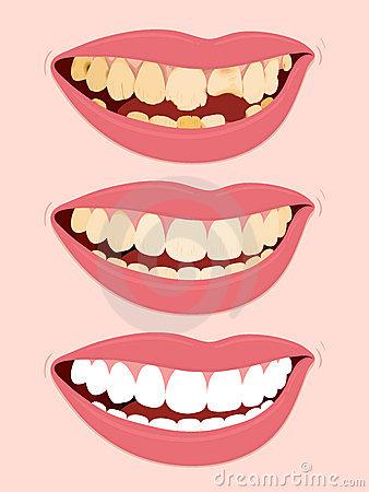 Dentatura Illustrazioni, Vettoriali E Clipart Stock.