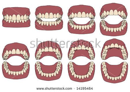 Ilustração Vetorial Prótese Dentária, Foto.