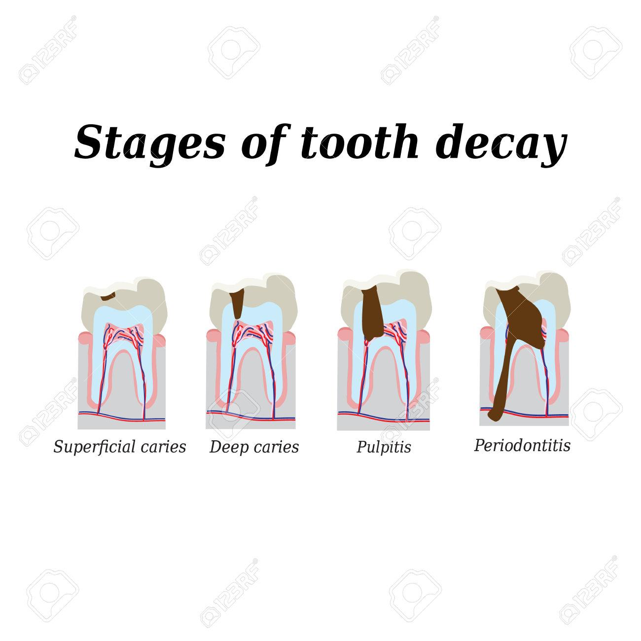 Fasi Di Sviluppo Della Carie Dentaria. Illustrazione Vettoriale Su.