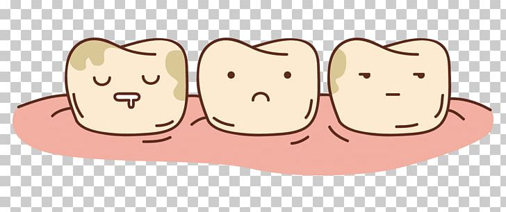 Tooth Decay Dentin Hypersensitivity Dentistry Tooth.