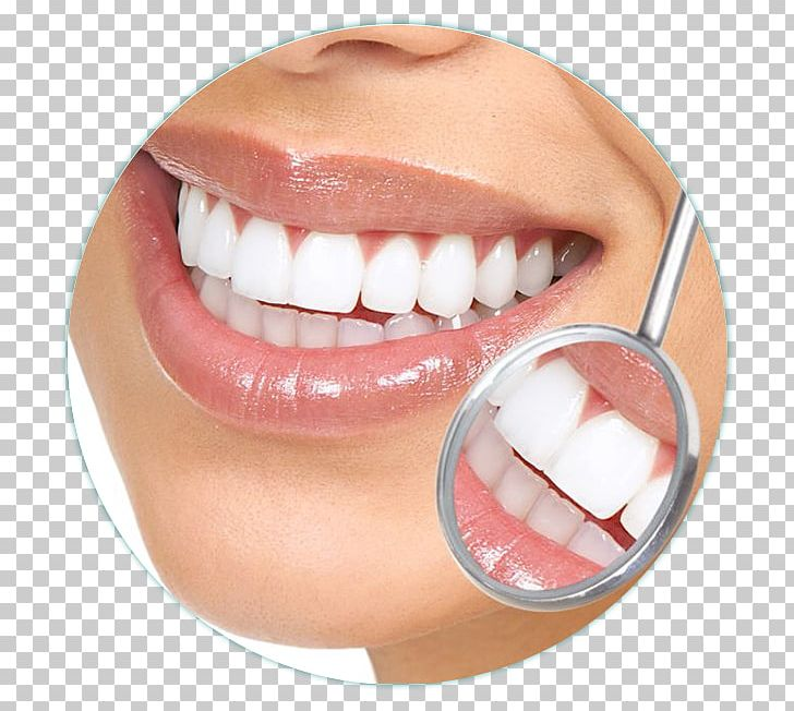 Cosmetic Dentistry Tooth Dental Implant PNG, Clipart, Chin, Clinic.