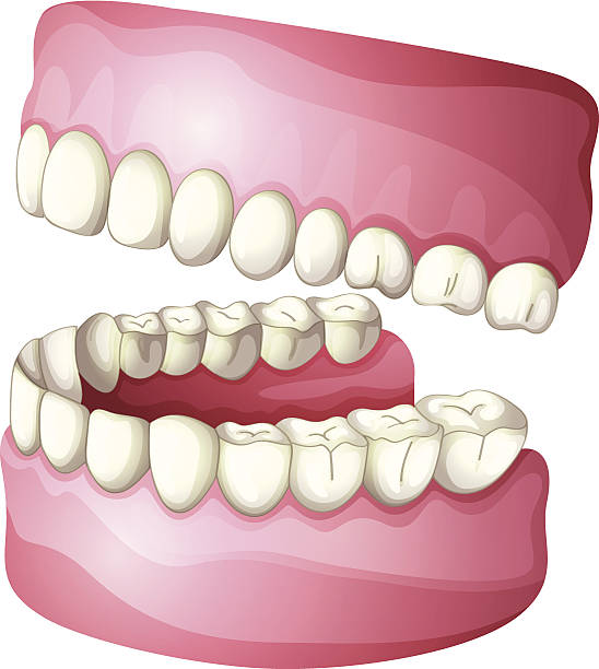 Best Dentures Illustrations, Royalty.
