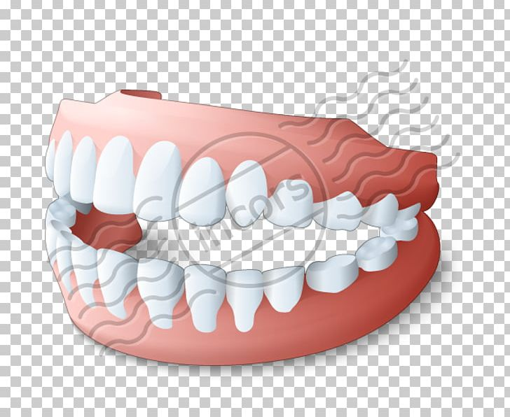 Toothbrush Dentures Dentistry Removable Partial Denture PNG, Clipart.