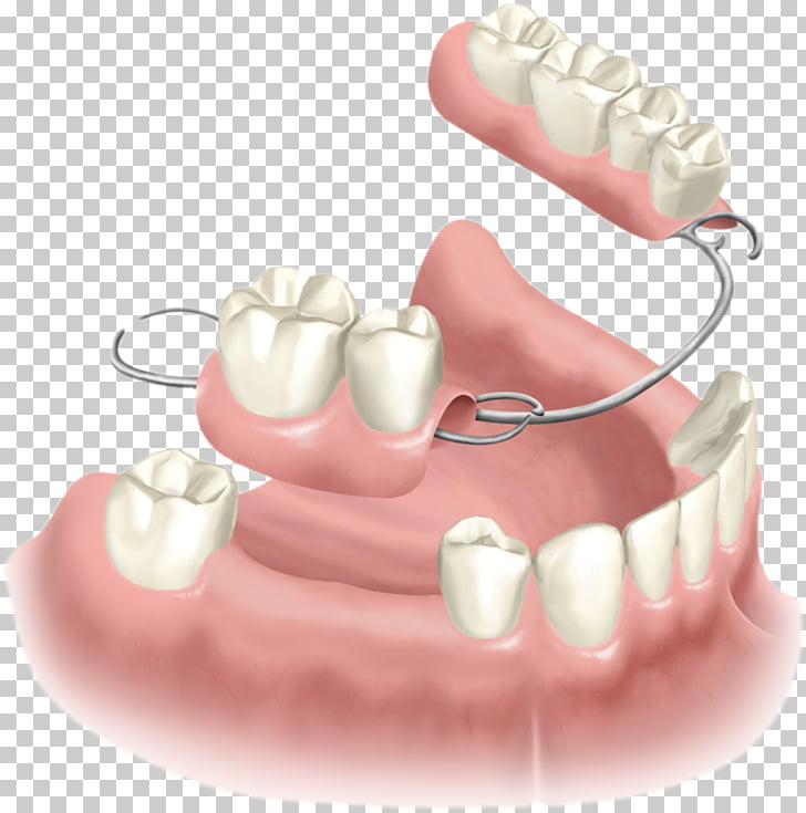 Removable partial denture Dentures Dental implant Dentistry.