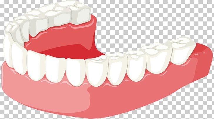 Tooth Jaw Dentures PNG, Clipart, Cartoon, Clip Art, Dent, Dentures.