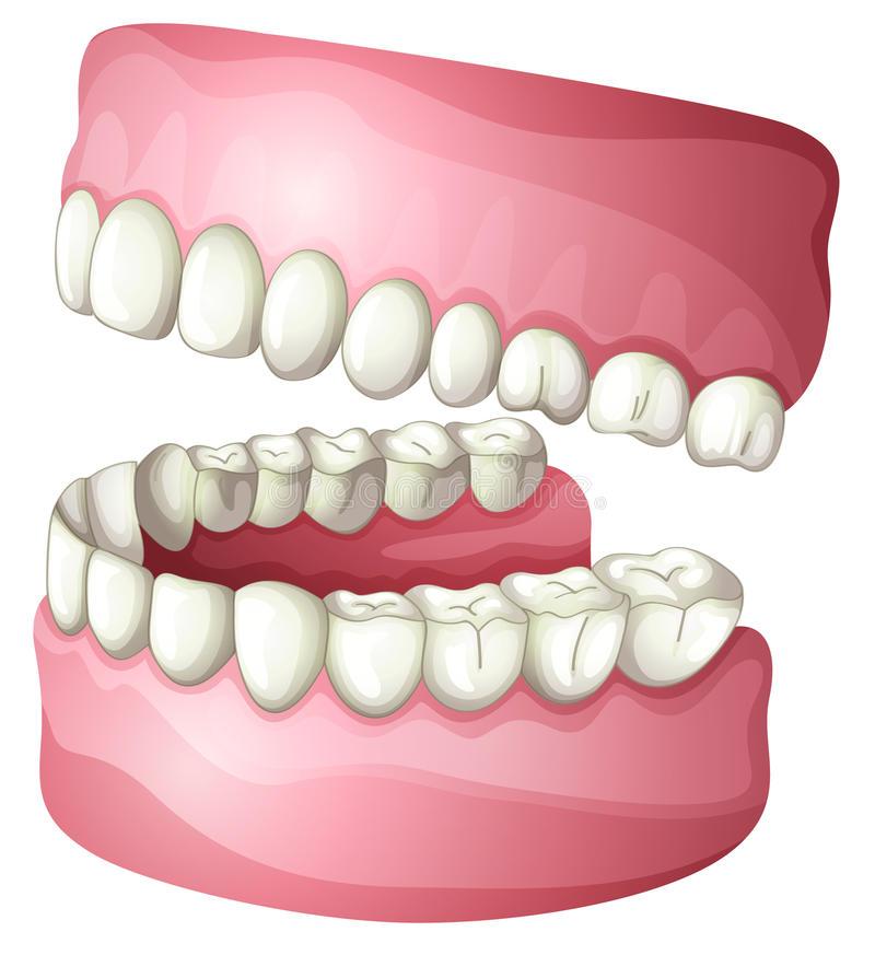 Denture Stock Illustrations.