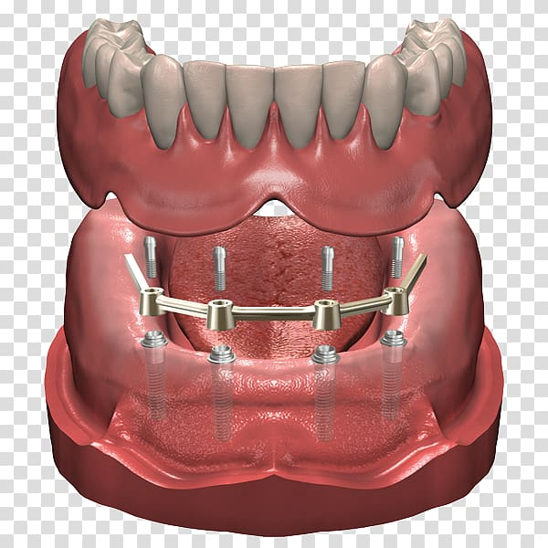 Dentures Dental implant Prosthesis Dentist, Implant transparent.