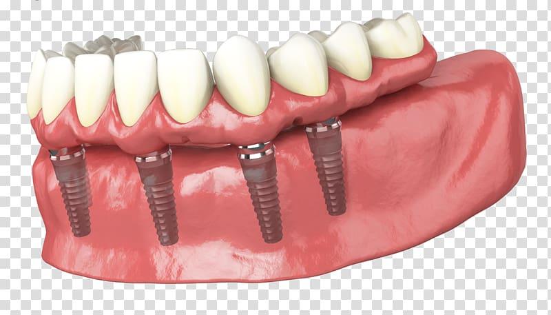 Tooth Dental implant Dentures Dentistry, bridge transparent.