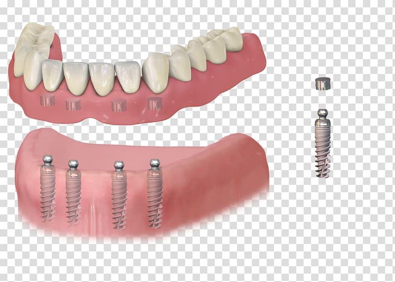 Dental implant Dentistry Dentures Removable partial denture, bridge.
