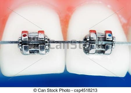 Stock Photos of Front teeth braces super macro , shallow depth of.