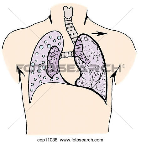 Stock Illustration of Tracheal deviation ccp11038.