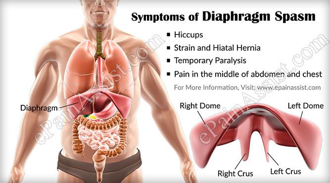 Diaphragm Spasm.