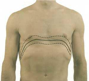 Diaphragm Pain Relief.