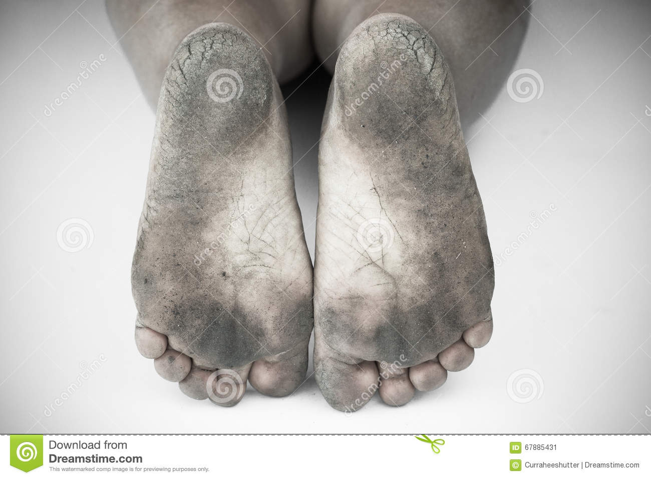 Monochrome Or Back And White Of Dirty Foot Or Cracked Heels Isolate.