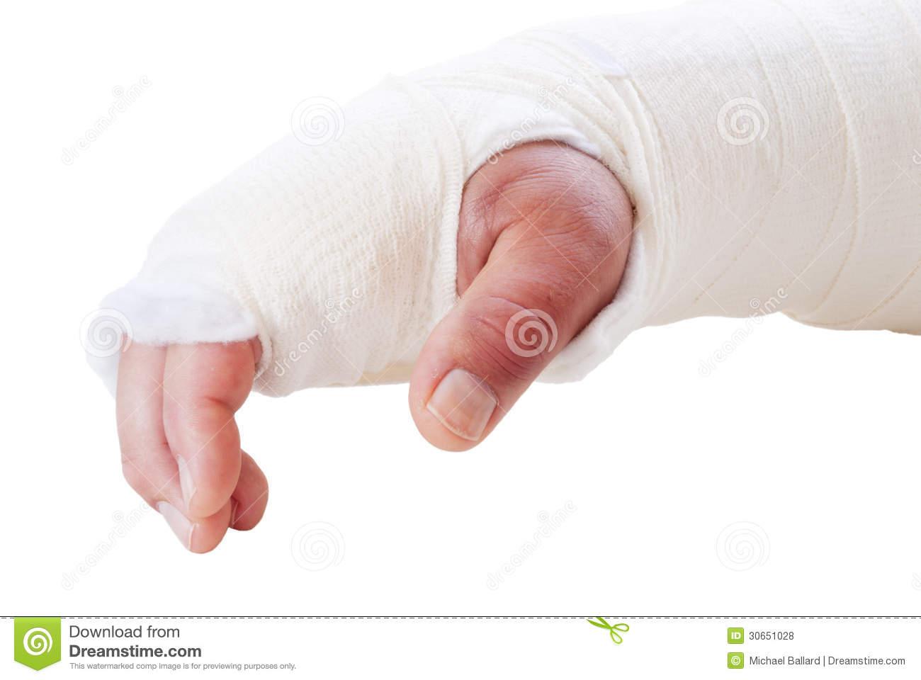 Swollen Arm Clipart.