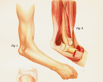 Dislocation Of Bones At Different Finger Joints Eps10.
