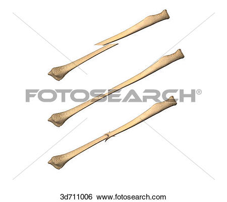 Stock Illustration of Displaced, greenstick, and impacted.