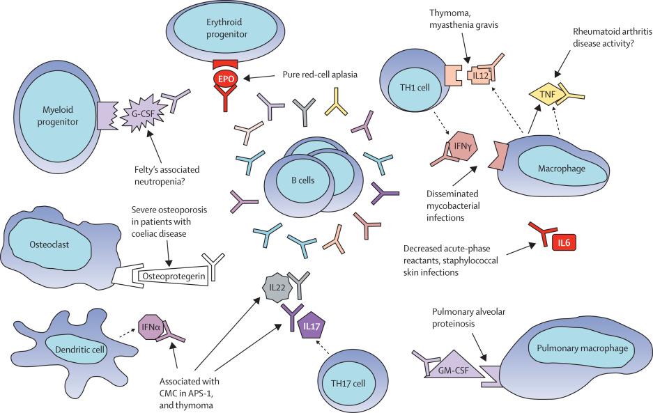 Anticytokine autoantibodies in infectious diseases: pathogenesis.