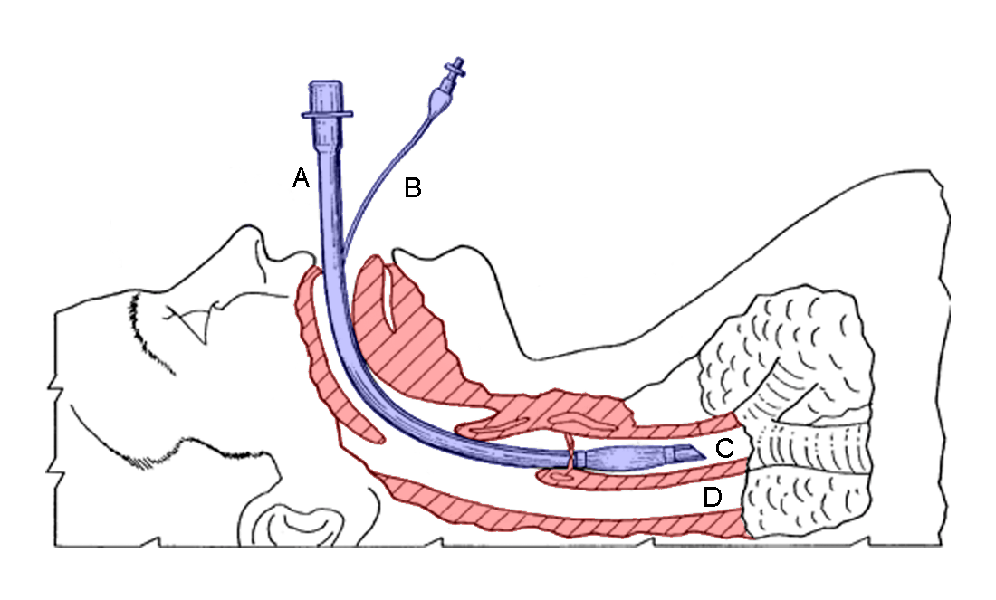 WILL YOU HAVE A BREATHING TUBE DOWN YOUR THROAT DURING YOUR.