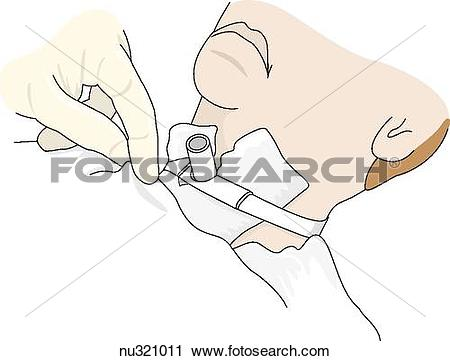 Clipart of patient's neck, from mouth down, with trachostomy tube.