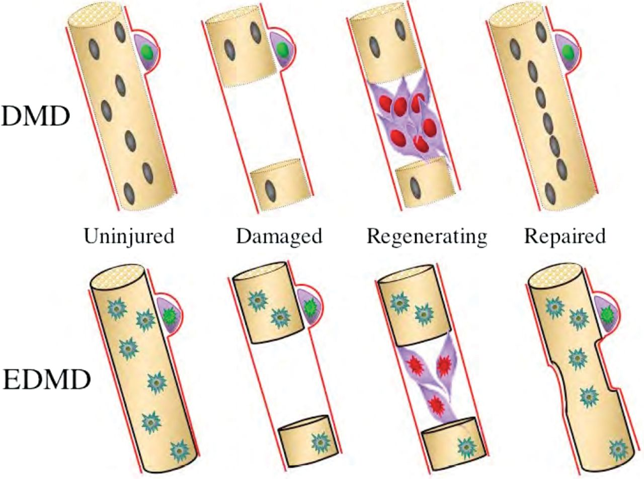 Does satellite cell dysfunction contribute to disease progression.