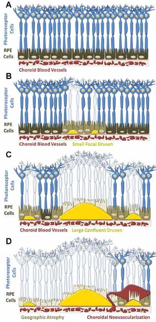 Cartoon depiction of AMD progression (A) Healthy retina.