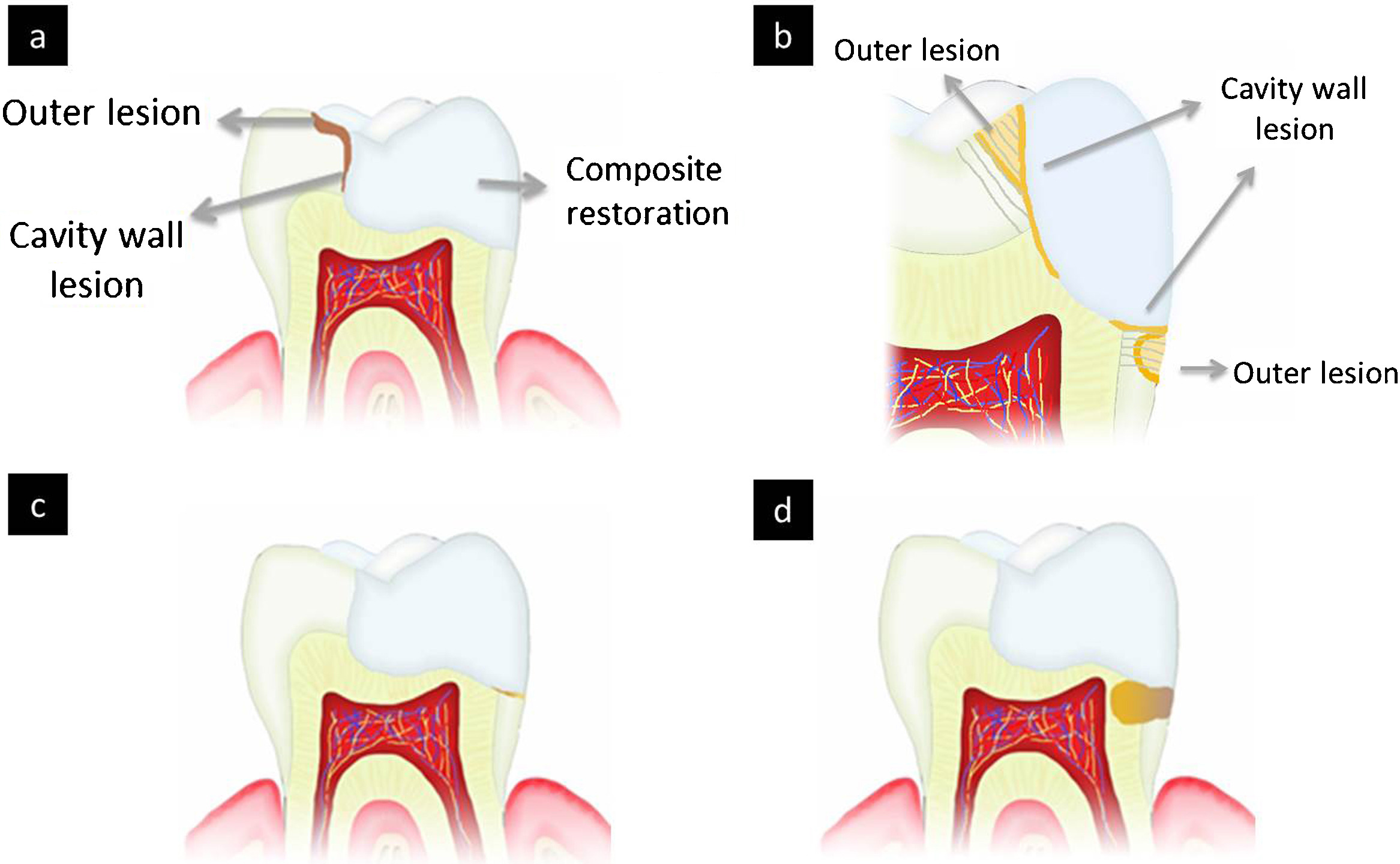 Is secondary caries with composites a material.