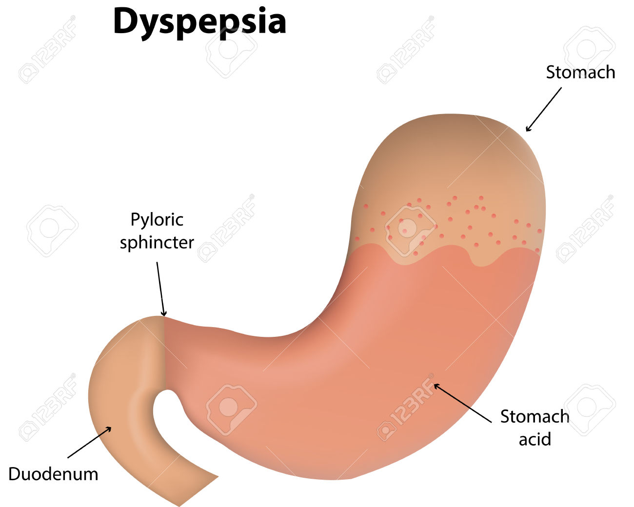 Dyspepsia Royalty Free Cliparts, Vectors, And Stock Illustration.
