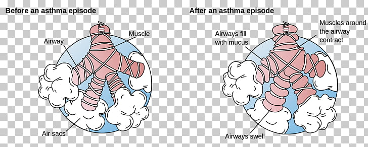 46 Dyspnea PNG cliparts for free download.
