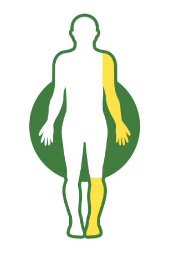 How Dysport® (abobotulinumtoxinA) Works for Adult Spasticity.