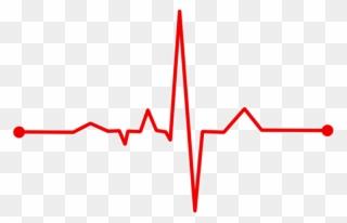 Heart Rate, Bpm, Ecg, Ekg, Electrocardiogram, Ecg Waves.