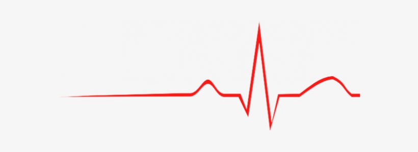 An Ecg Is A Measure Of The Electrical Output Of The.