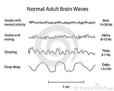 Normal Brain Waves EEG Royalty Free Stock Photo.