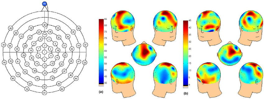 VLF frequency EEG scalp distribution. Spatial distribution of.