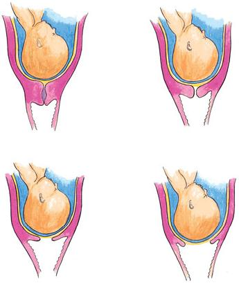 cervical effacement Images, Graphics, Comments and Pictures.
