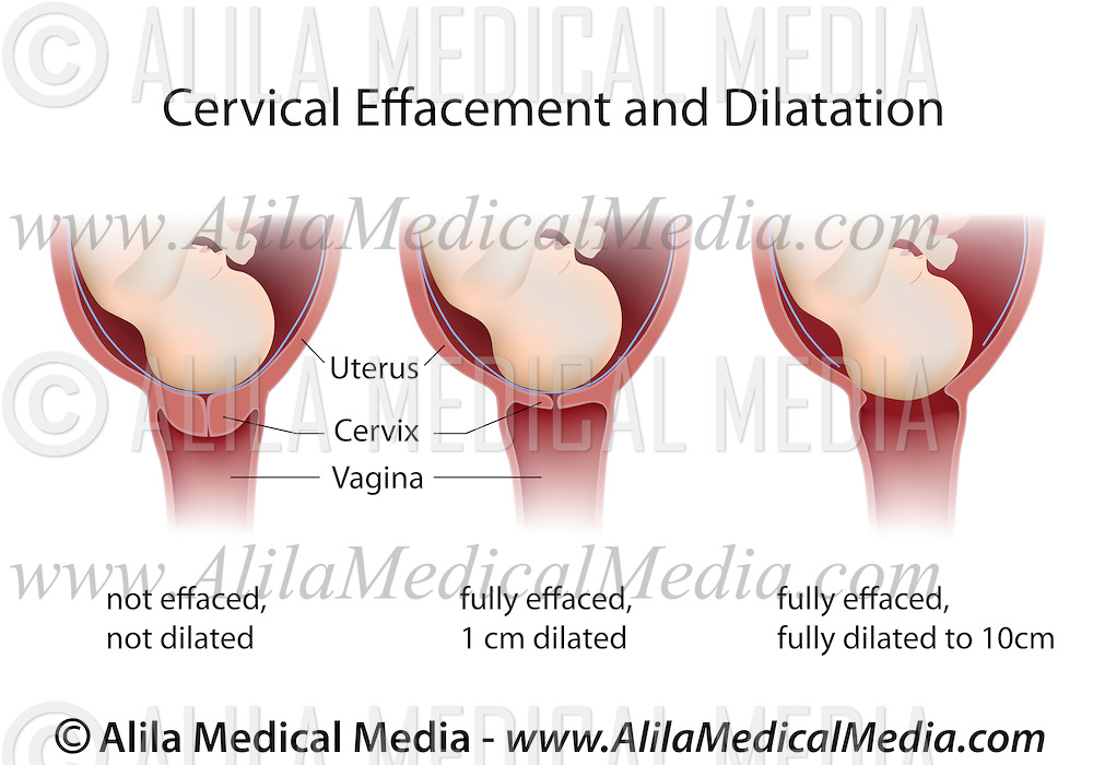 Cervical Effacement and Dilatation.