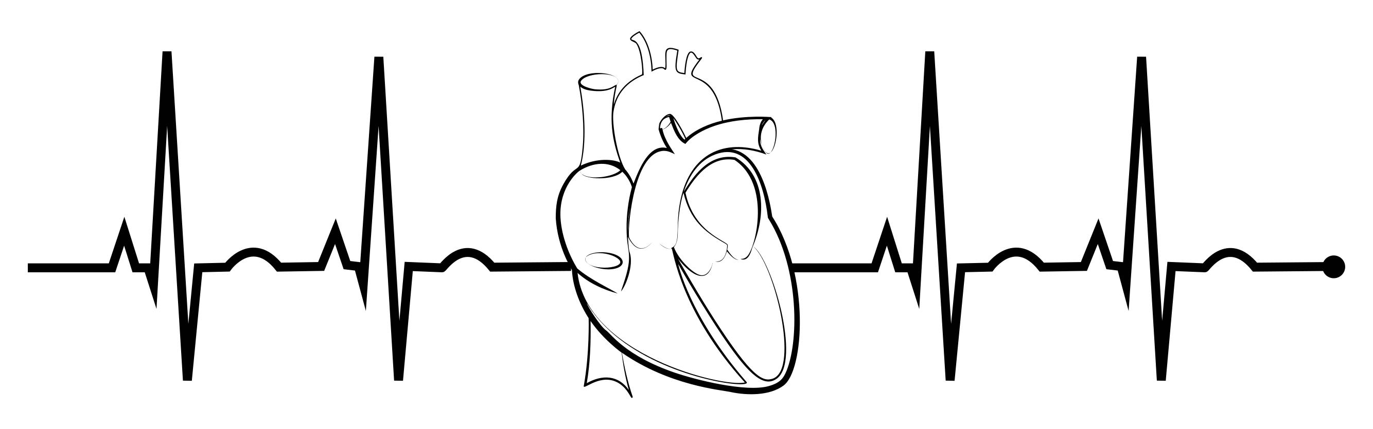Collection of Ekg clipart.