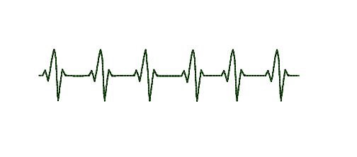 Ekg clipart black and white.