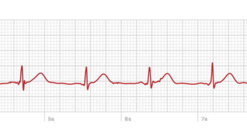 A look at the Apple Watch's ECG, from someone who needs it.